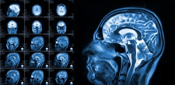 ptsd how it can affect your memory function